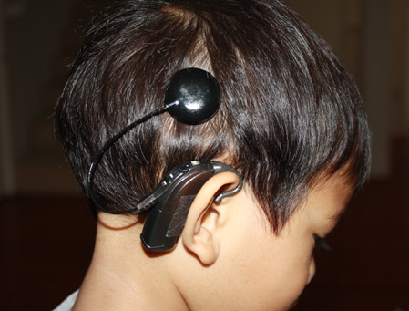 Indiana University researchers study cognitive risks in children with cochlear implants